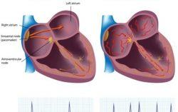 Atrial Fibrillation: A very common cardiac problem